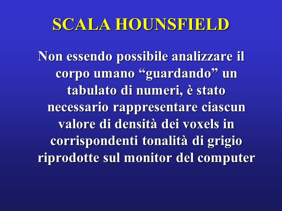 SCALA HOUNSFIELD
