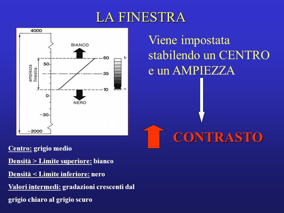 LA FINESTRA Viene impostata stabilendo un CENTRO e un AMPIEZZA. CONTRASTO. Centro: grigio medio.