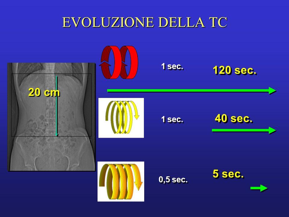 EVOLUZIONE DELLA TC 120 sec. 20 cm 40 sec. 5 sec. 1 sec. 1 sec.