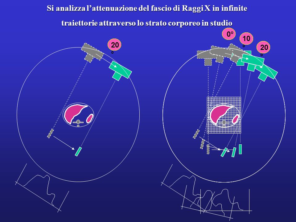 Si analizza l'attenuazione del fascio di Raggi X in infinite
