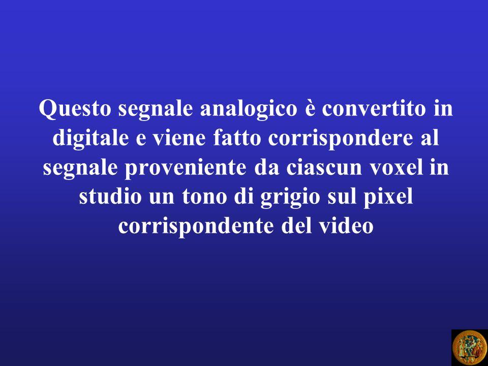Questo segnale analogico è convertito in digitale e viene fatto corrispondere al segnale proveniente da ciascun voxel in studio un tono di grigio sul pixel corrispondente del video