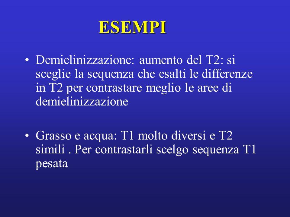 ESEMPI Demielinizzazione: aumento del T2: si sceglie la sequenza che esalti le differenze in T2 per contrastare meglio le aree di demielinizzazione.