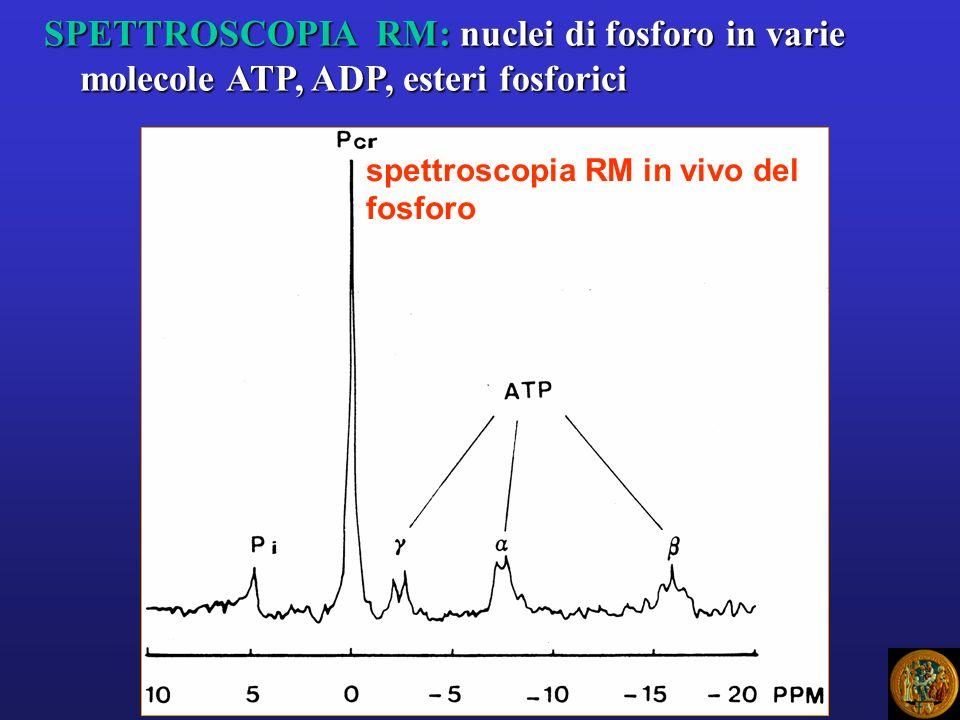 SPETTROSCOPIA RM: nuclei di fosforo in varie molecole ATP, ADP, esteri fosforici