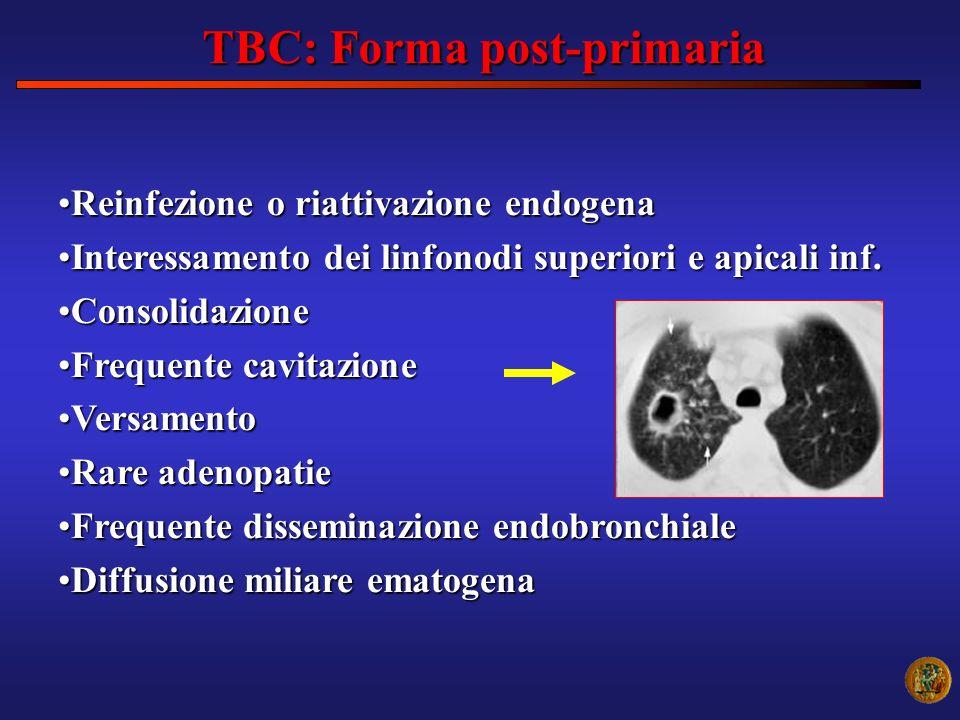 TBC: Forma post-primaria