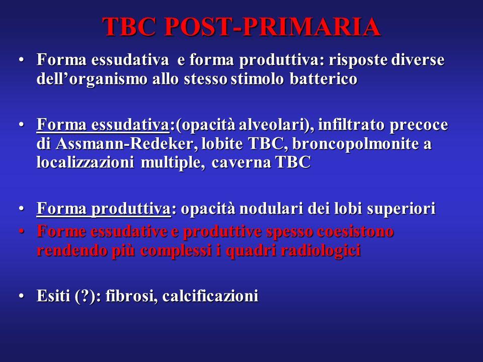 TBC POST-PRIMARIA Forma essudativa e forma produttiva: risposte diverse dell'organismo allo stesso stimolo batterico.