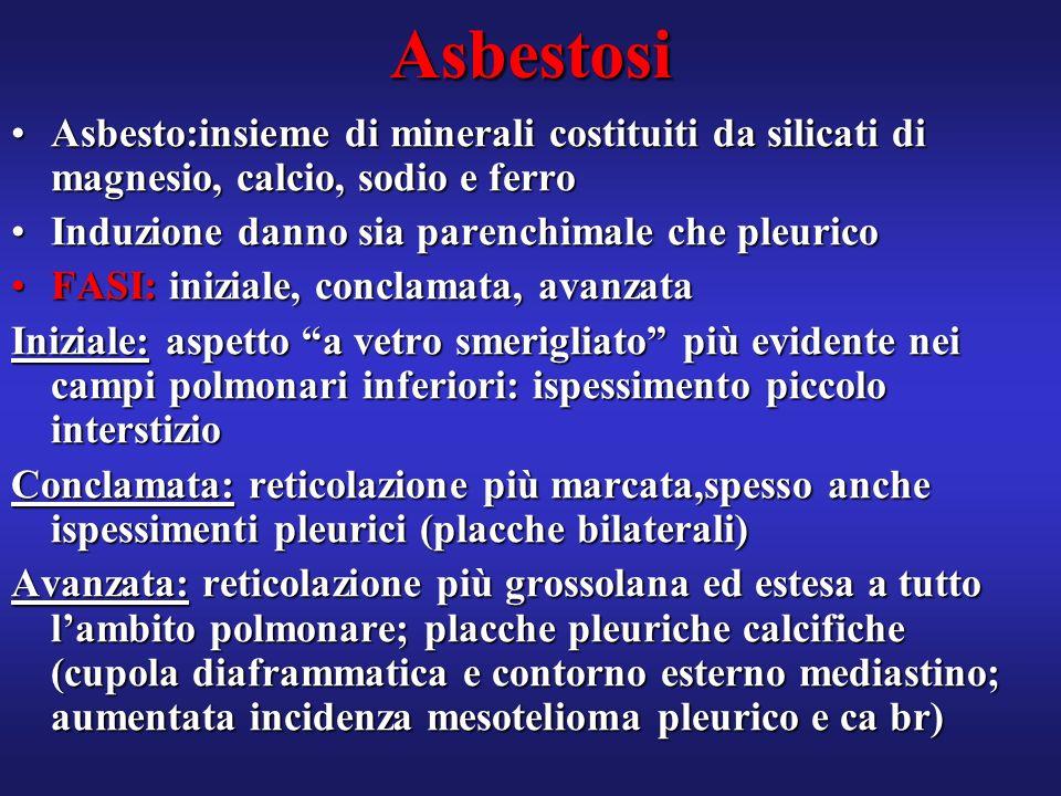 Asbestosi Asbesto:insieme di minerali costituiti da silicati di magnesio, calcio, sodio e ferro. Induzione danno sia parenchimale che pleurico.