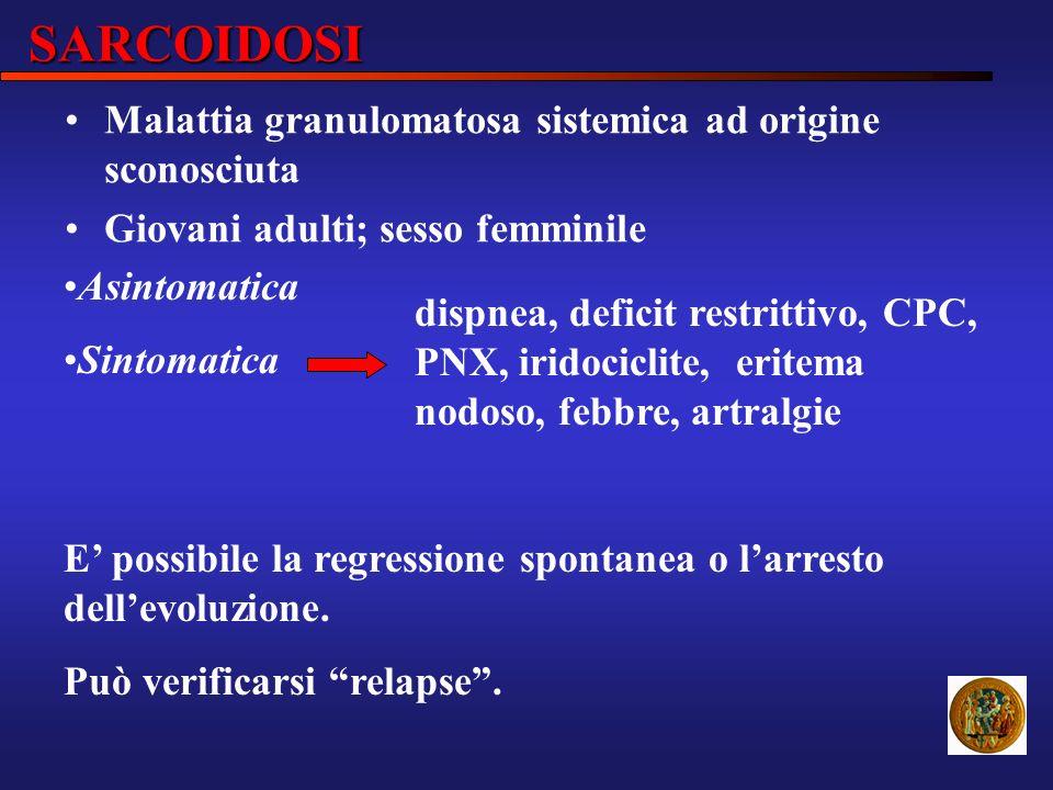SARCOIDOSI Malattia granulomatosa sistemica ad origine sconosciuta
