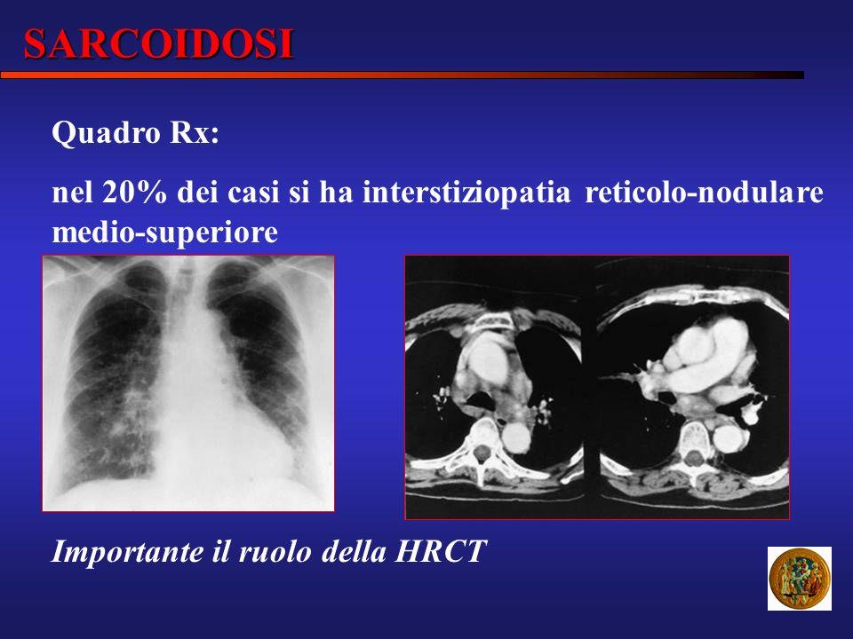 SARCOIDOSI Quadro Rx: nel 20% dei casi si ha interstiziopatia reticolo-nodulare medio-superiore.