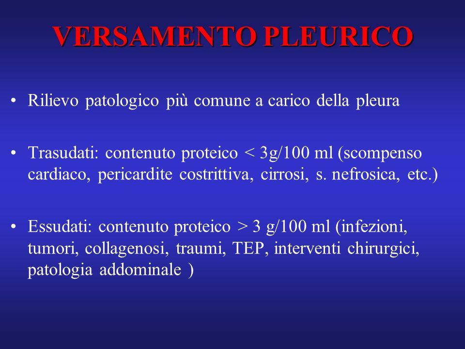 VERSAMENTO PLEURICO Rilievo patologico più comune a carico della pleura.