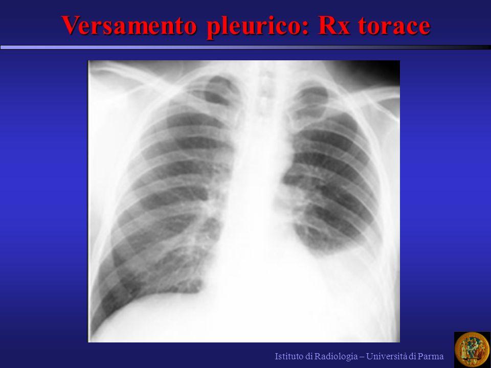 Versamento pleurico: Rx torace