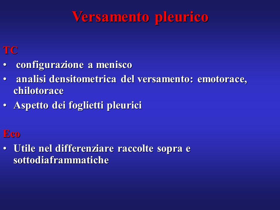 Versamento pleurico TC configurazione a menisco