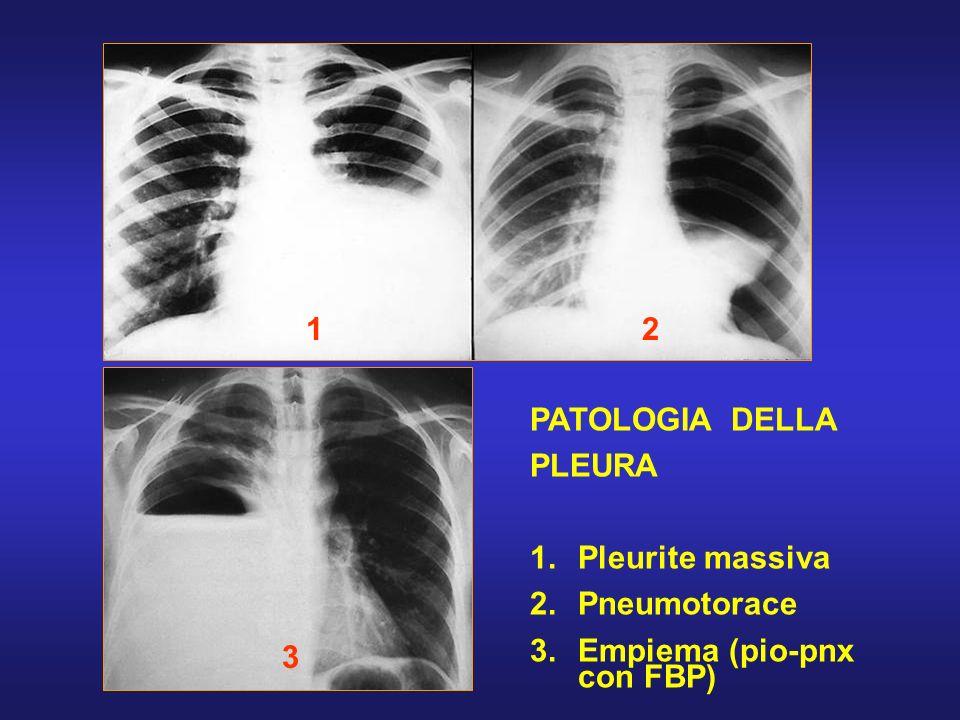 1 2 PATOLOGIA DELLA PLEURA Pleurite massiva Pneumotorace Empiema (pio-pnx con FBP) 3