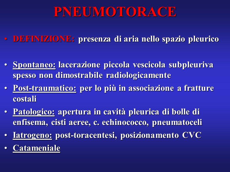 PNEUMOTORACE DEFINIZIONE: presenza di aria nello spazio pleurico