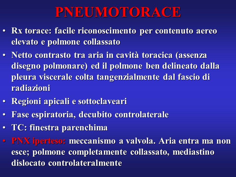 PNEUMOTORACE Rx torace: facile riconoscimento per contenuto aereo elevato e polmone collassato.