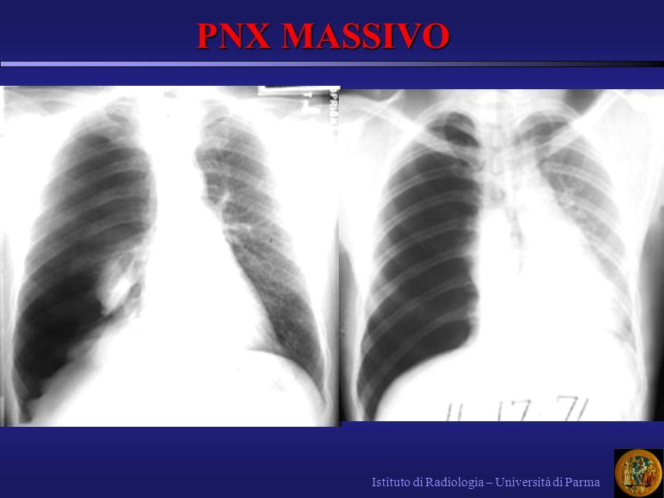 PNX MASSIVO Istituto di Radiologia – Università di Parma