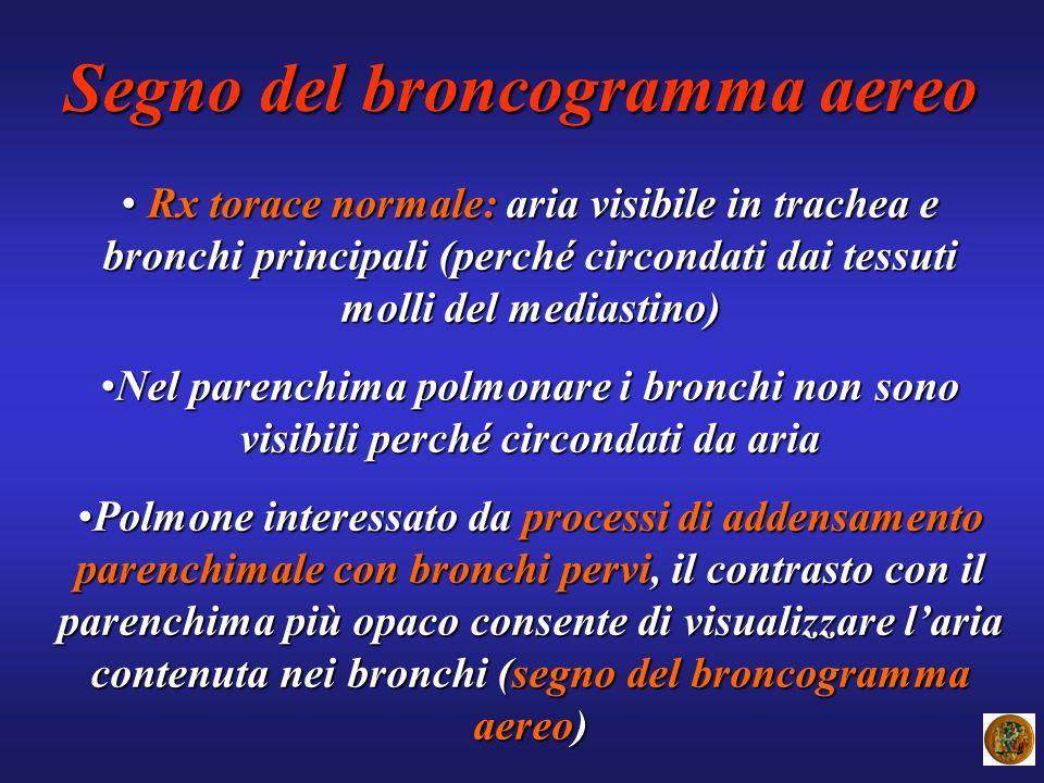 Segno del broncogramma aereo