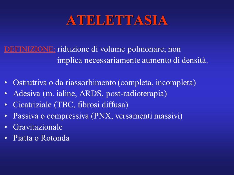ATELETTASIA implica necessariamente aumento di densità.