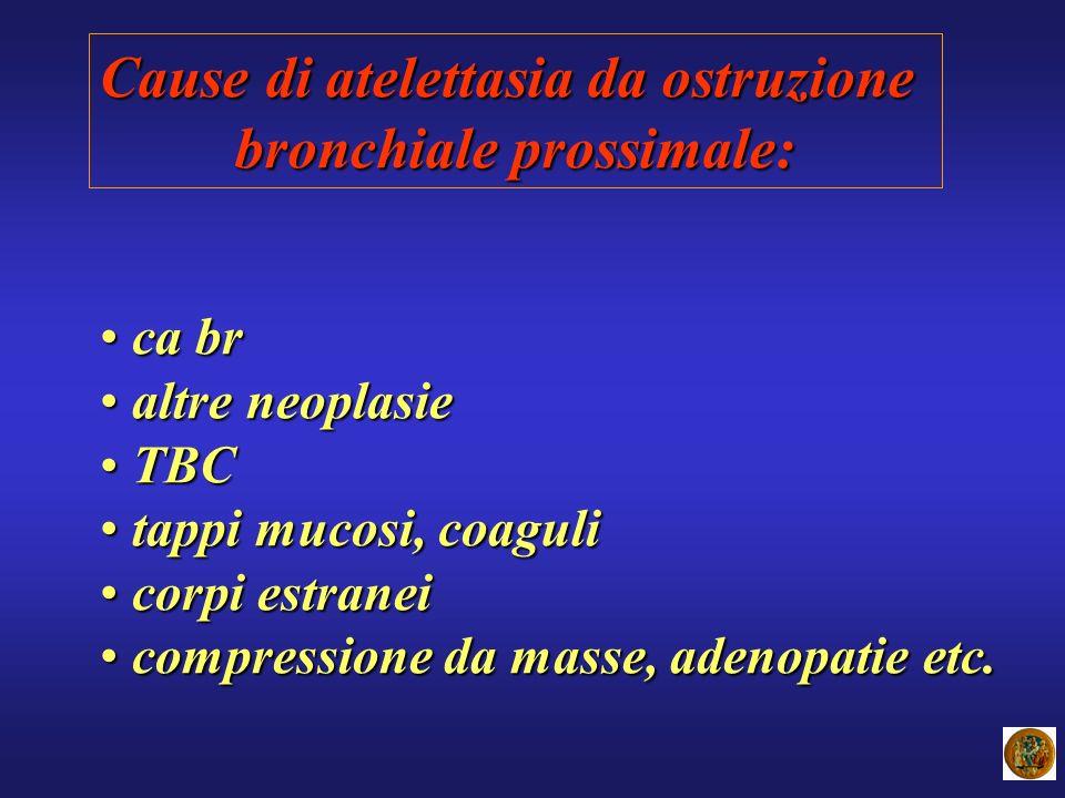 Cause di atelettasia da ostruzione bronchiale prossimale: