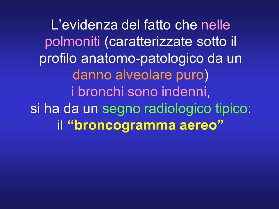 L'evidenza del fatto che nelle polmoniti (caratterizzate sotto il profilo anatomo-patologico da un danno alveolare puro) i bronchi sono indenni, si ha da un segno radiologico tipico: il broncogramma aereo