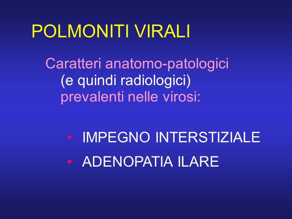POLMONITI VIRALI Caratteri anatomo-patologici (e quindi radiologici) prevalenti nelle virosi: IMPEGNO INTERSTIZIALE.