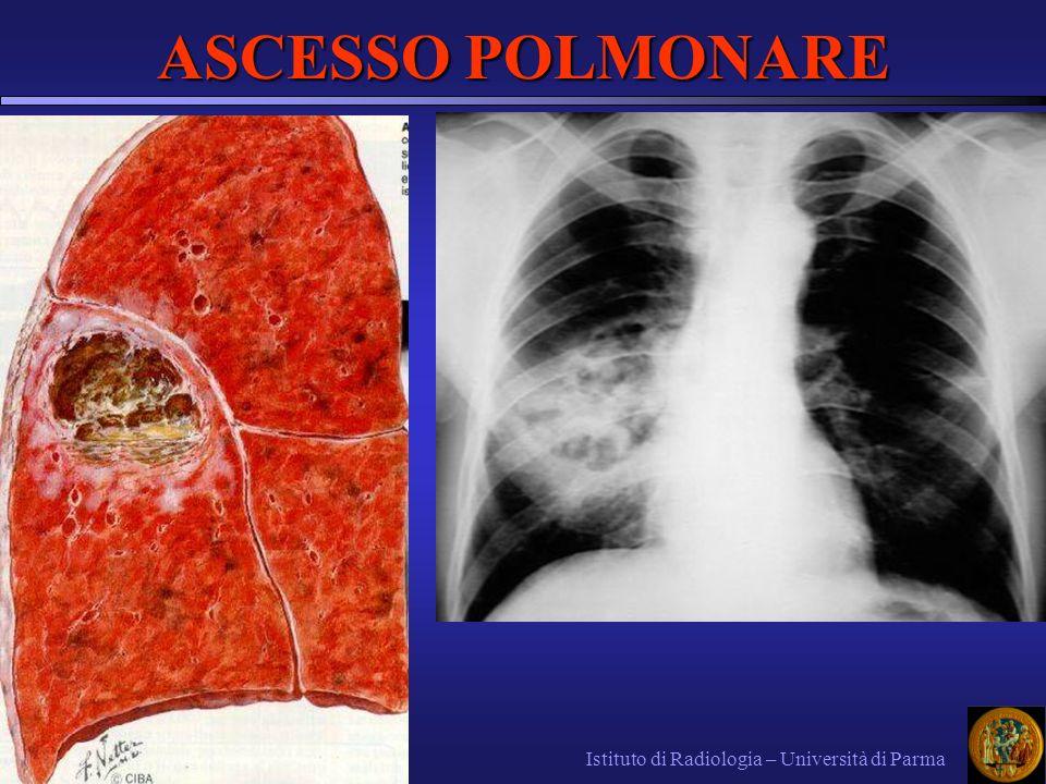 ASCESSO POLMONARE Istituto di Radiologia – Università di Parma