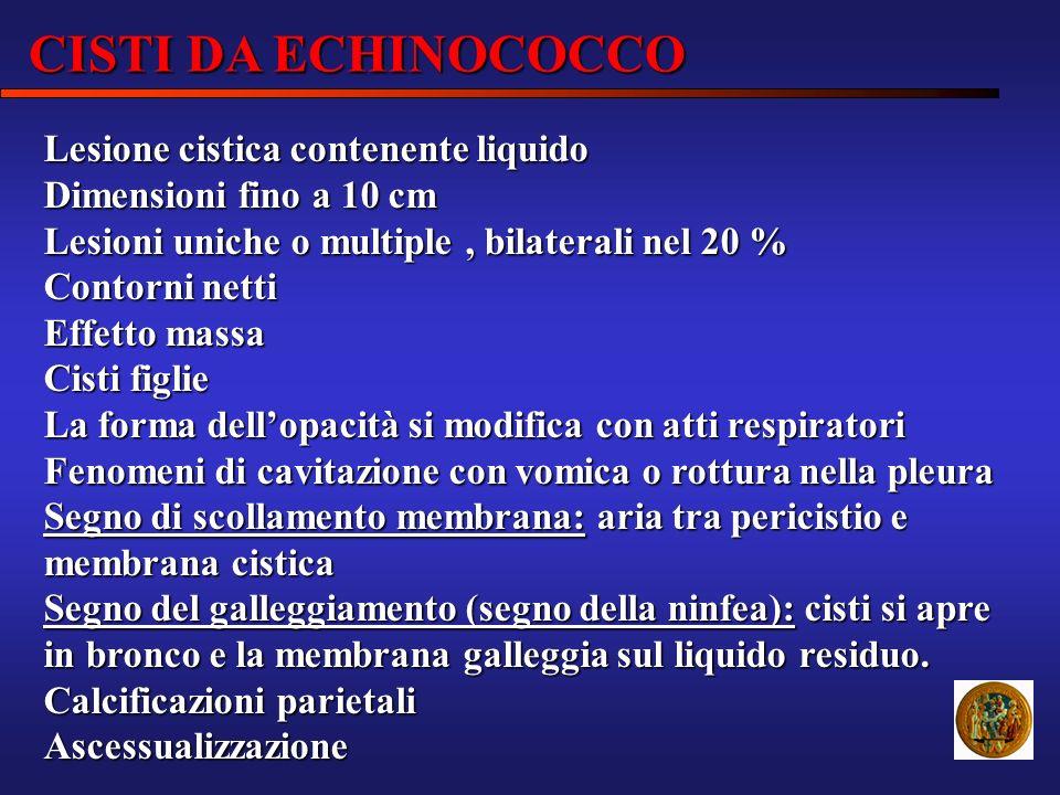 CISTI DA ECHINOCOCCO Lesione cistica contenente liquido