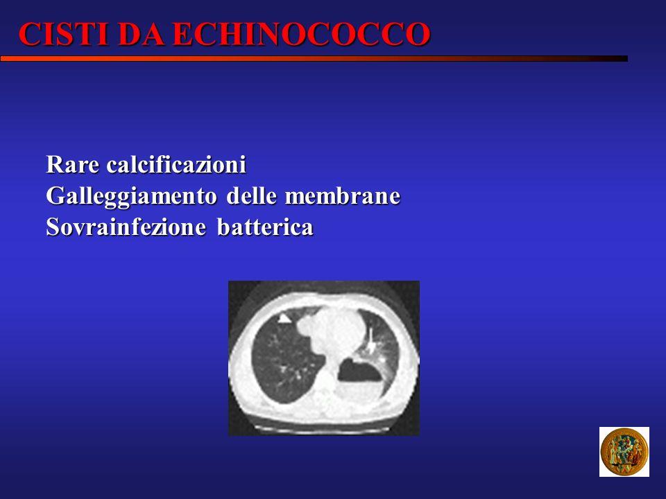 CISTI DA ECHINOCOCCO Rare calcificazioni Galleggiamento delle membrane