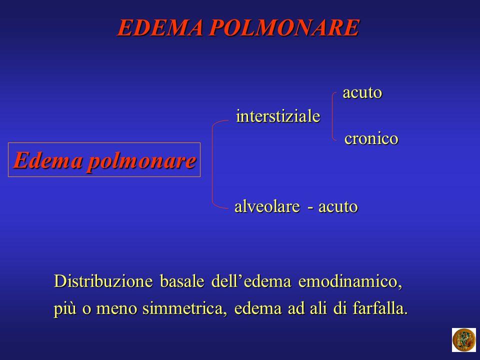 EDEMA POLMONARE Edema polmonare