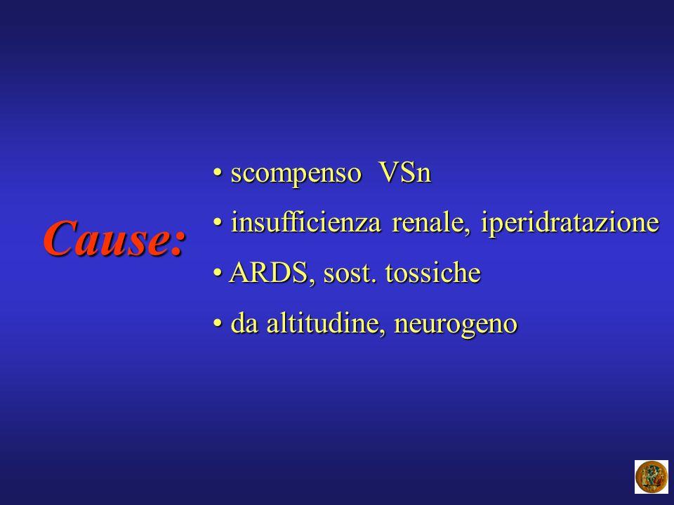 Cause: scompenso VSn insufficienza renale, iperidratazione