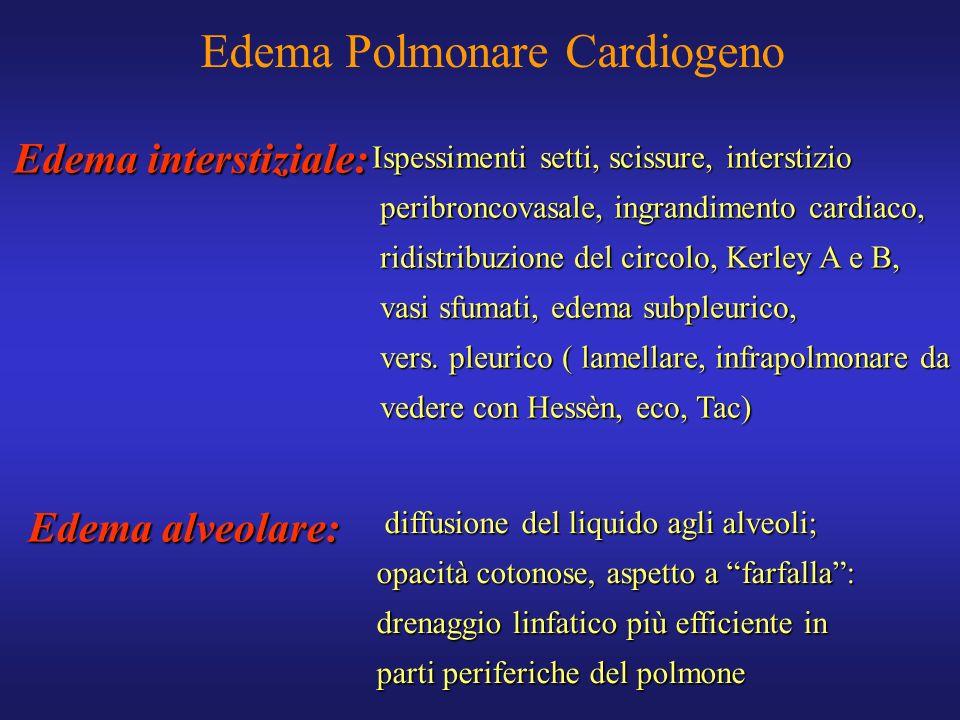 Edema Polmonare Cardiogeno