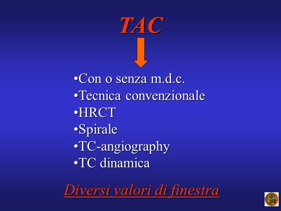 TAC Diversi valori di finestra Con o senza m.d.c.