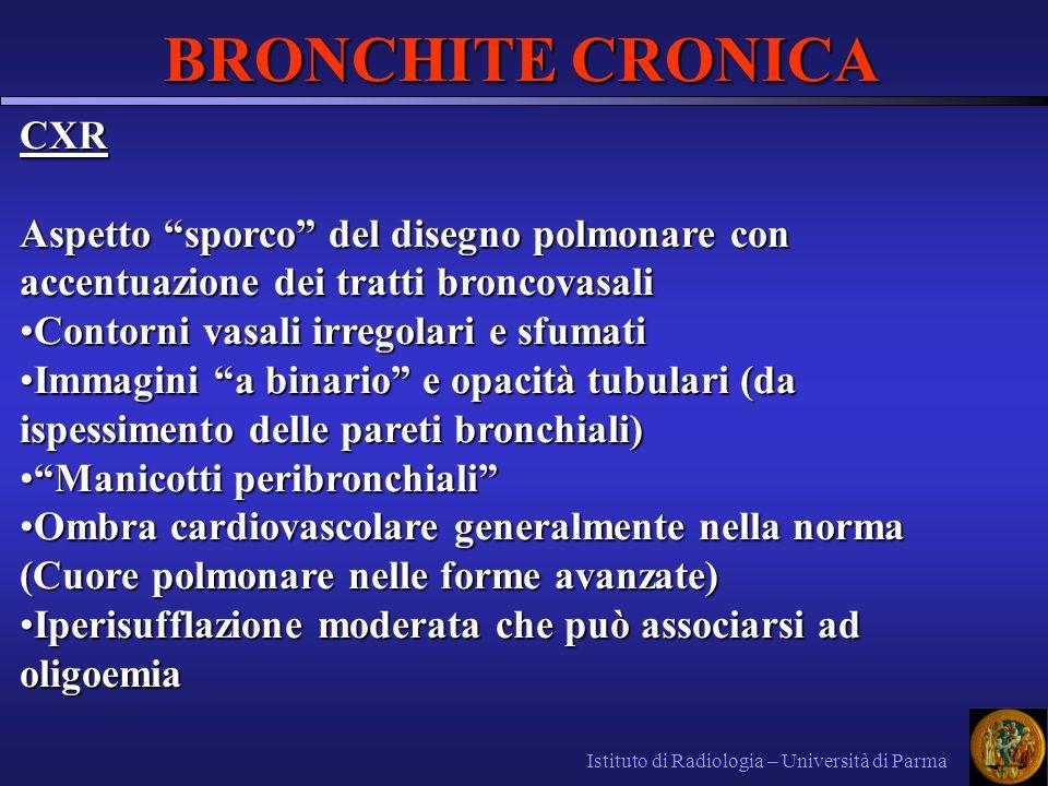 BRONCHITE CRONICA CXR. Aspetto sporco del disegno polmonare con accentuazione dei tratti broncovasali.