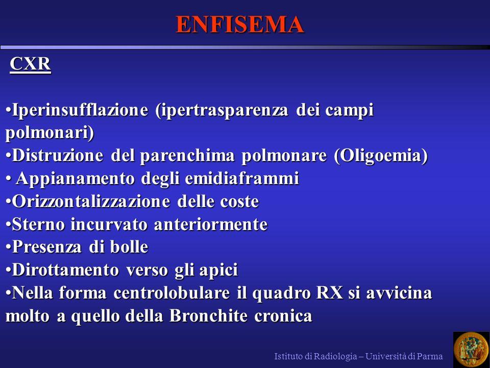 ENFISEMA CXR Iperinsufflazione (ipertrasparenza dei campi polmonari)