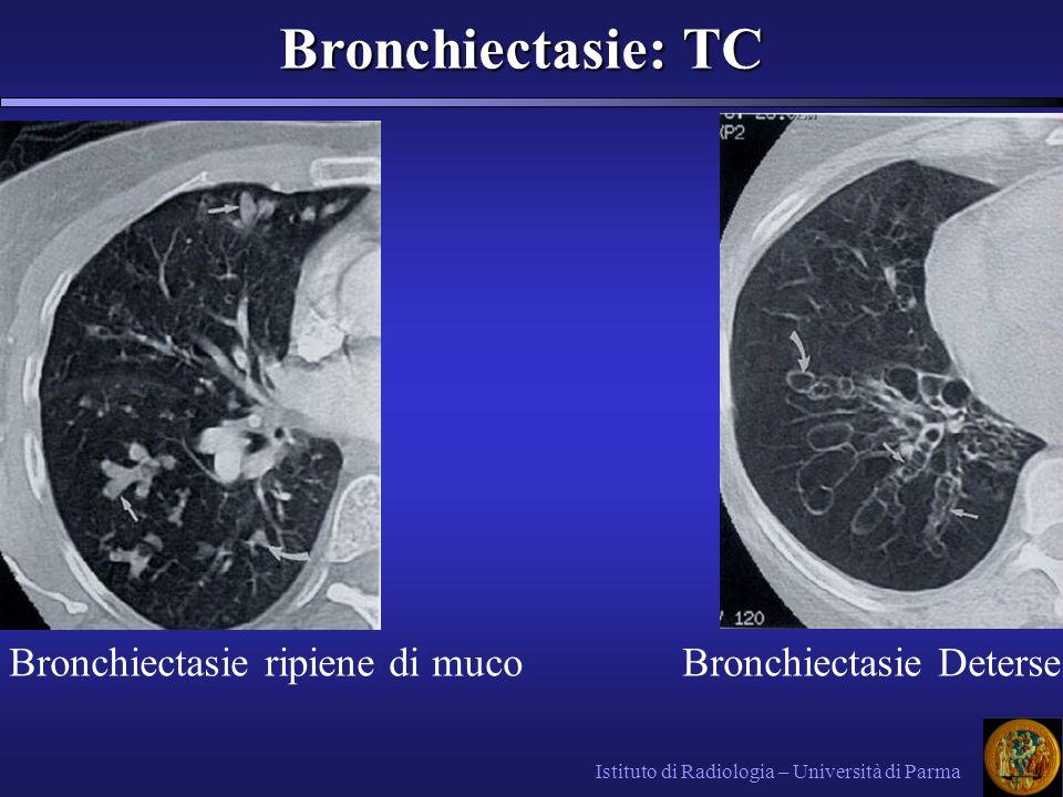 Bronchiectasie: TC Bronchiectasie ripiene di muco