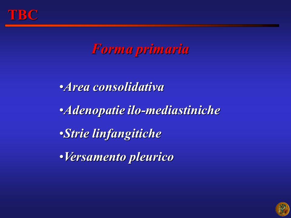 TBC Forma primaria Area consolidativa Adenopatie ilo-mediastiniche