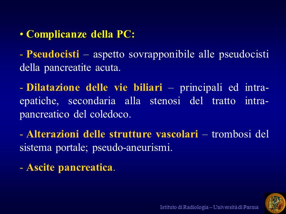 Complicanze della PC: Pseudocisti – aspetto sovrapponibile alle pseudocisti della pancreatite acuta.