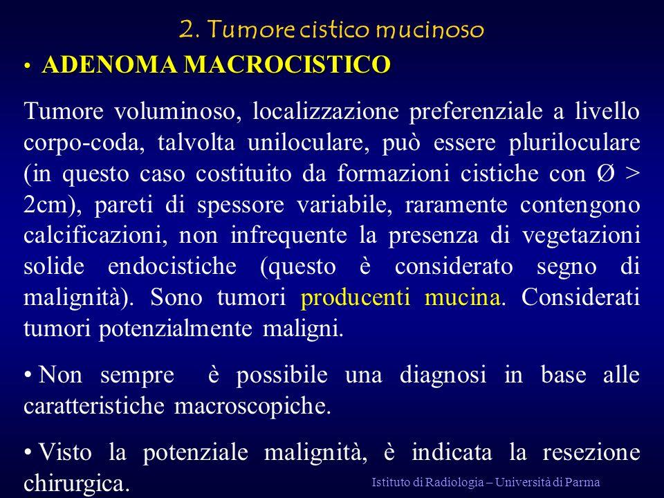 2. Tumore cistico mucinoso