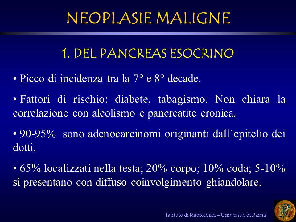 NEOPLASIE MALIGNE 1. DEL PANCREAS ESOCRINO