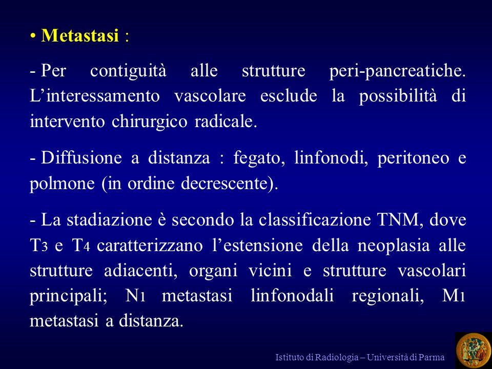 Metastasi : Per contiguità alle strutture peri-pancreatiche. L'interessamento vascolare esclude la possibilità di intervento chirurgico radicale.