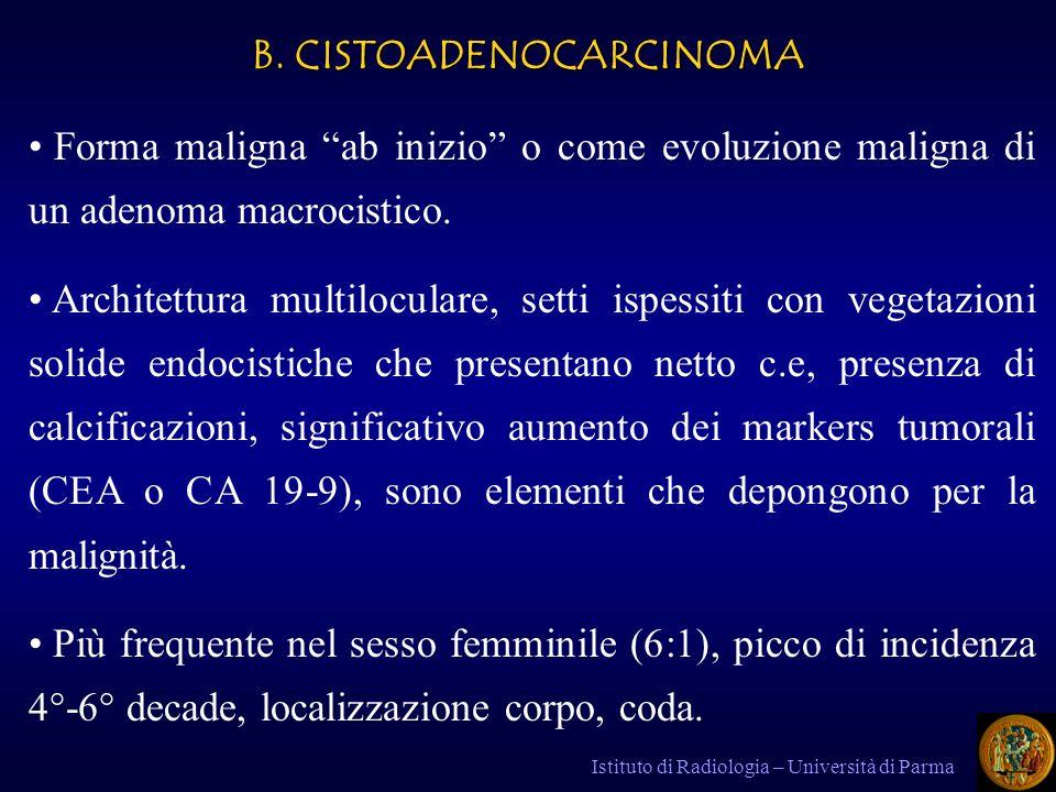 B. CISTOADENOCARCINOMA