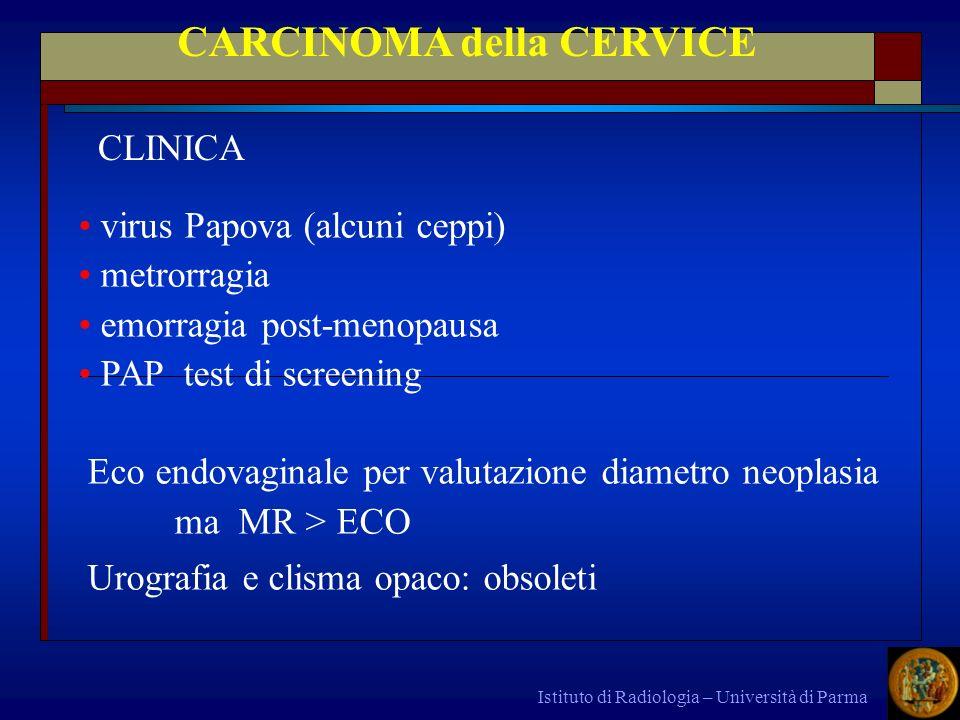 CARCINOMA della CERVICE