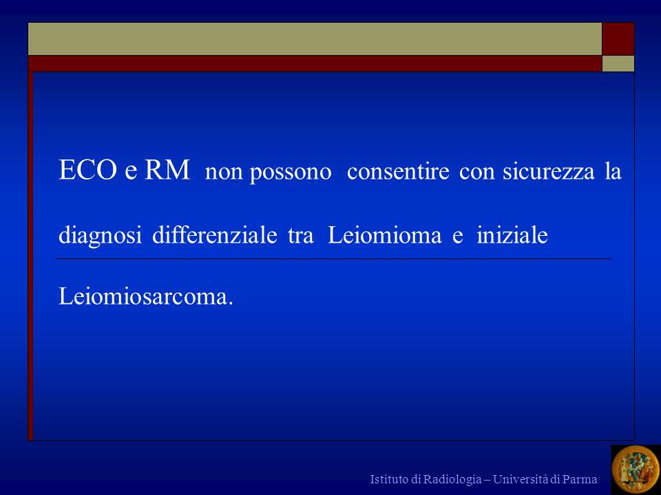 ECO e RM non possono consentire con sicurezza la diagnosi differenziale tra Leiomioma e iniziale Leiomiosarcoma.