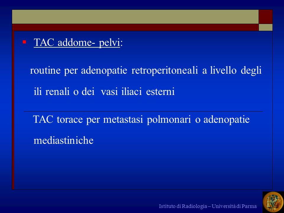 TAC torace per metastasi polmonari o adenopatie mediastiniche
