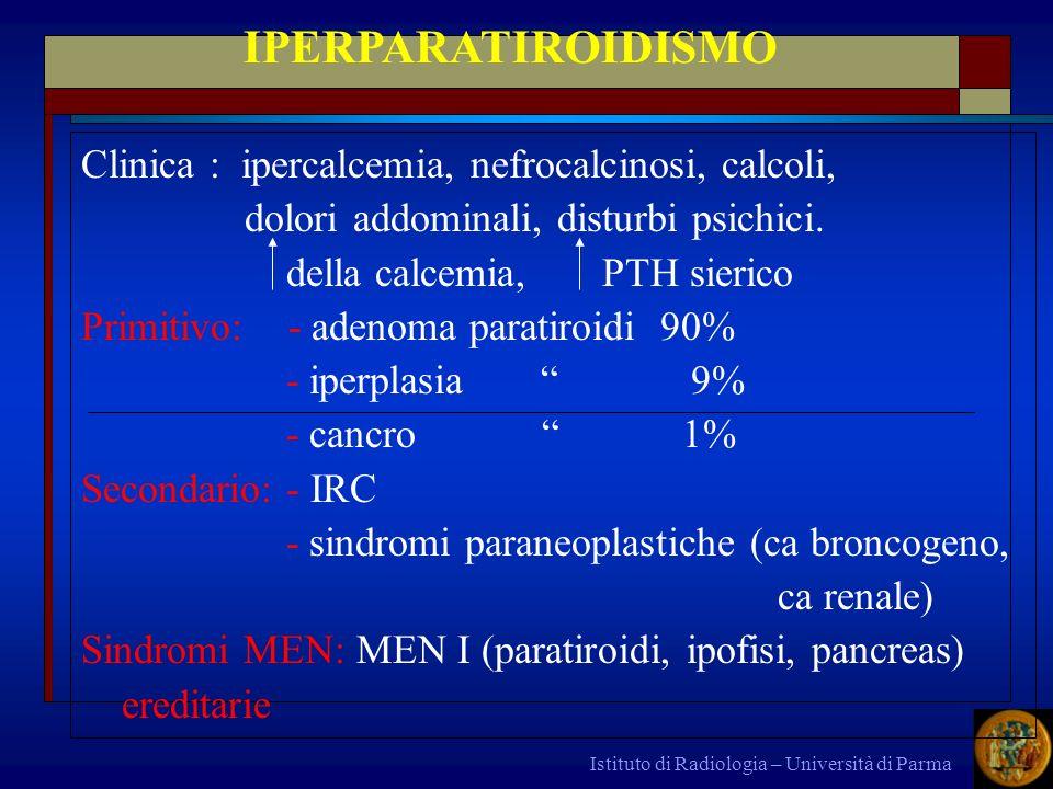 IPERPARATIROIDISMO Clinica : ipercalcemia, nefrocalcinosi, calcoli,