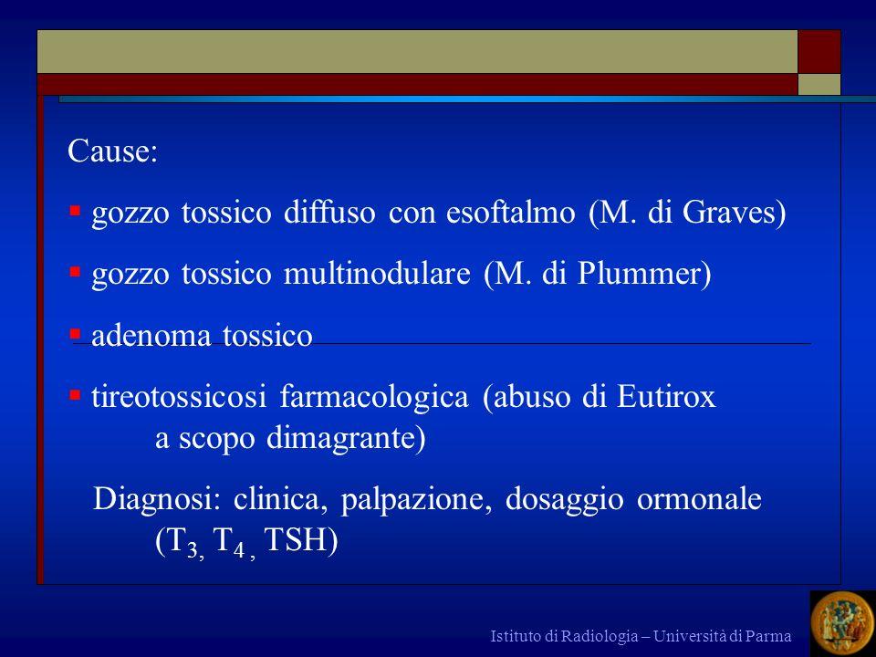 gozzo tossico diffuso con esoftalmo (M. di Graves)