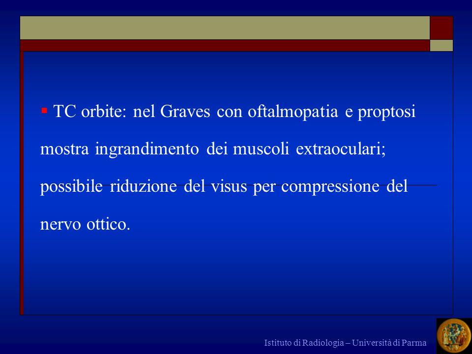 TC orbite: nel Graves con oftalmopatia e proptosi mostra ingrandimento dei muscoli extraoculari; possibile riduzione del visus per compressione del nervo ottico.
