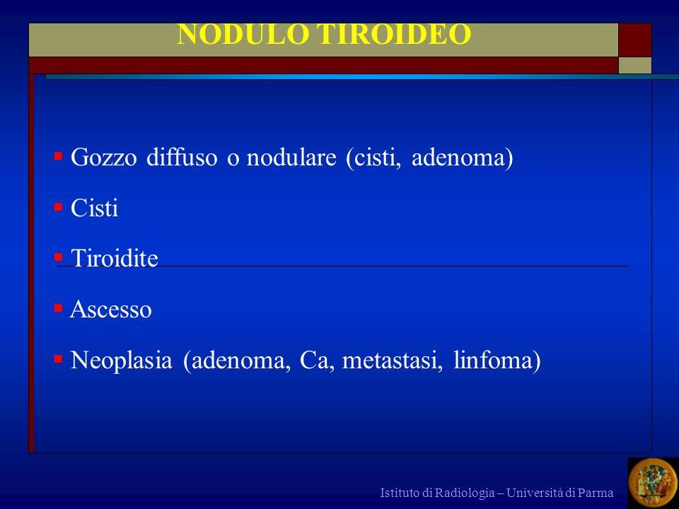 NODULO TIROIDEO Gozzo diffuso o nodulare (cisti, adenoma) Cisti