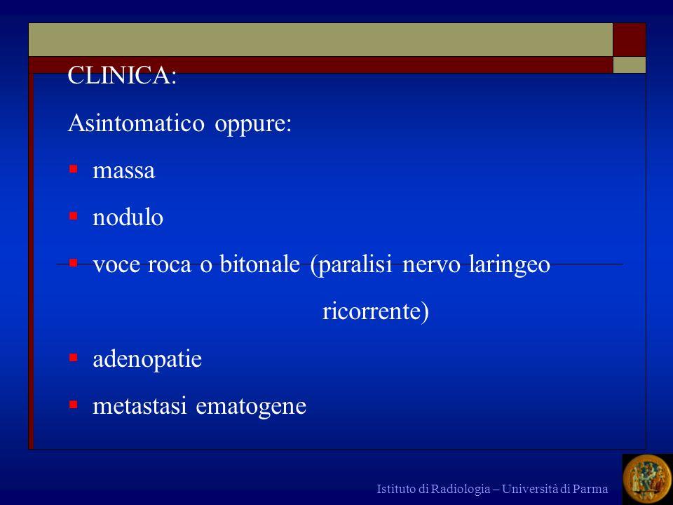 voce roca o bitonale (paralisi nervo laringeo ricorrente) adenopatie