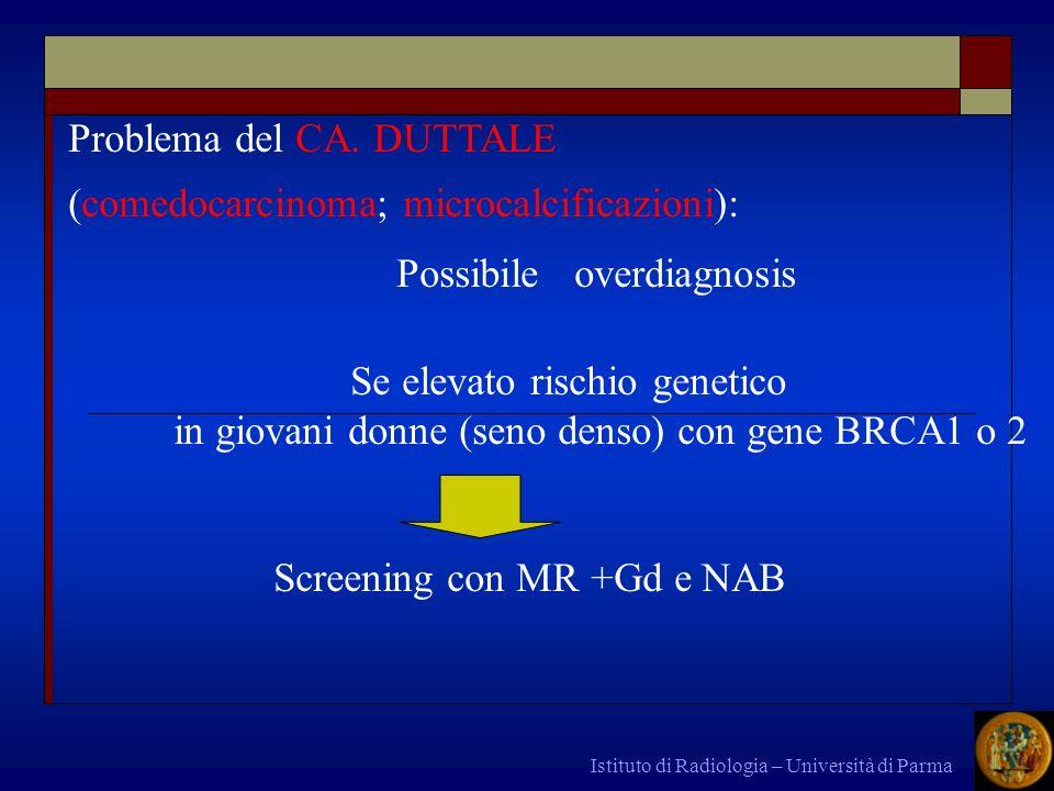 Problema del CA. DUTTALE (comedocarcinoma; microcalcificazioni):