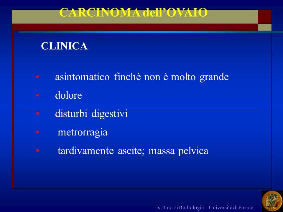 CARCINOMA dell'OVAIO CLINICA asintomatico finchè non è molto grande